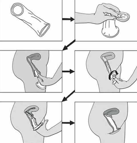 cách sử dụng bao cao su nữ